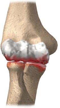 Artrose do cotovelo