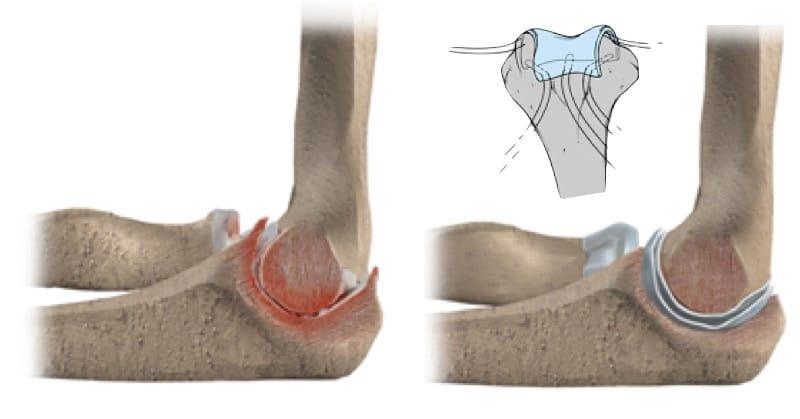 Ilustração da artroplastia de interposição