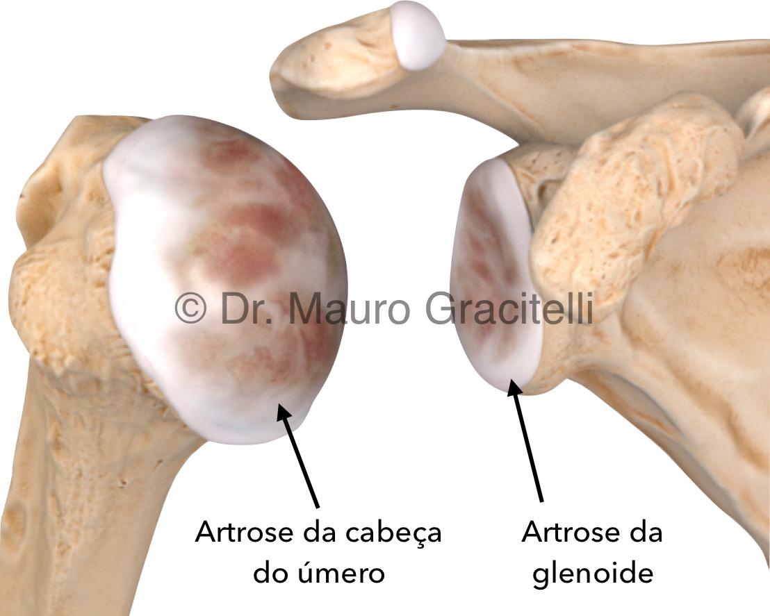 Artrose de ombro.jpeg
