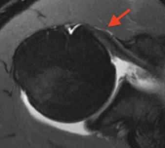 Visualização do tendão do subescapular na ressonância magnética