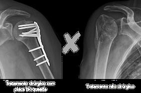 conservador vs cirurgico.png