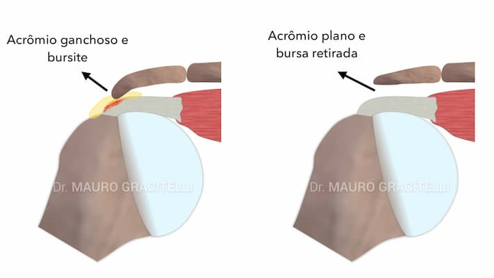Acromioplastia-bursectomia.jpeg