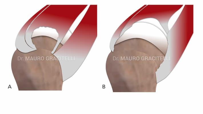 Diferentes tipos de lesão do manguito rotador. A) Lesão isolada de tamanho médio do supraespinal. B) Lesão extensa, com rotura do supra e infraespinal e subescapular.