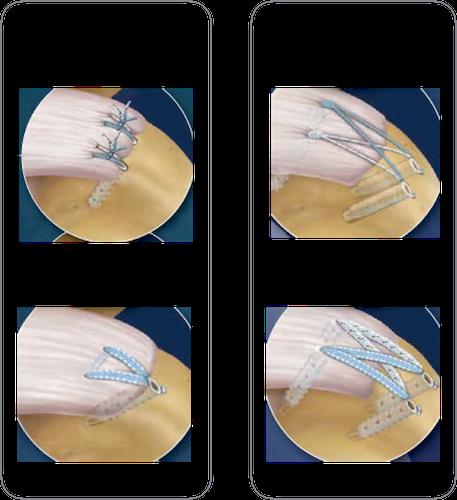 Diferentes tipos de sutura dos tendões do manguito rotador
