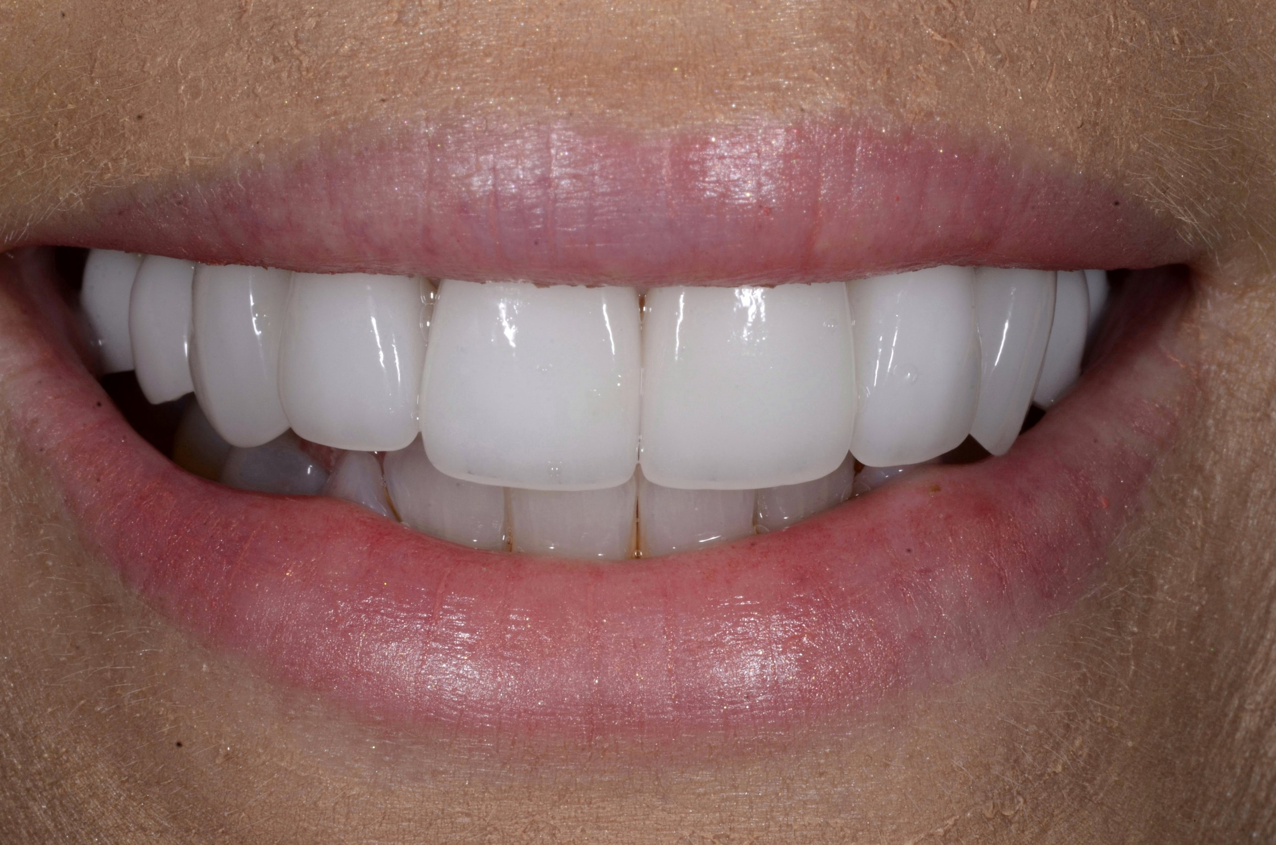After. Six custom porcelain veneers. Two custom porcelain crowns. Stunning!