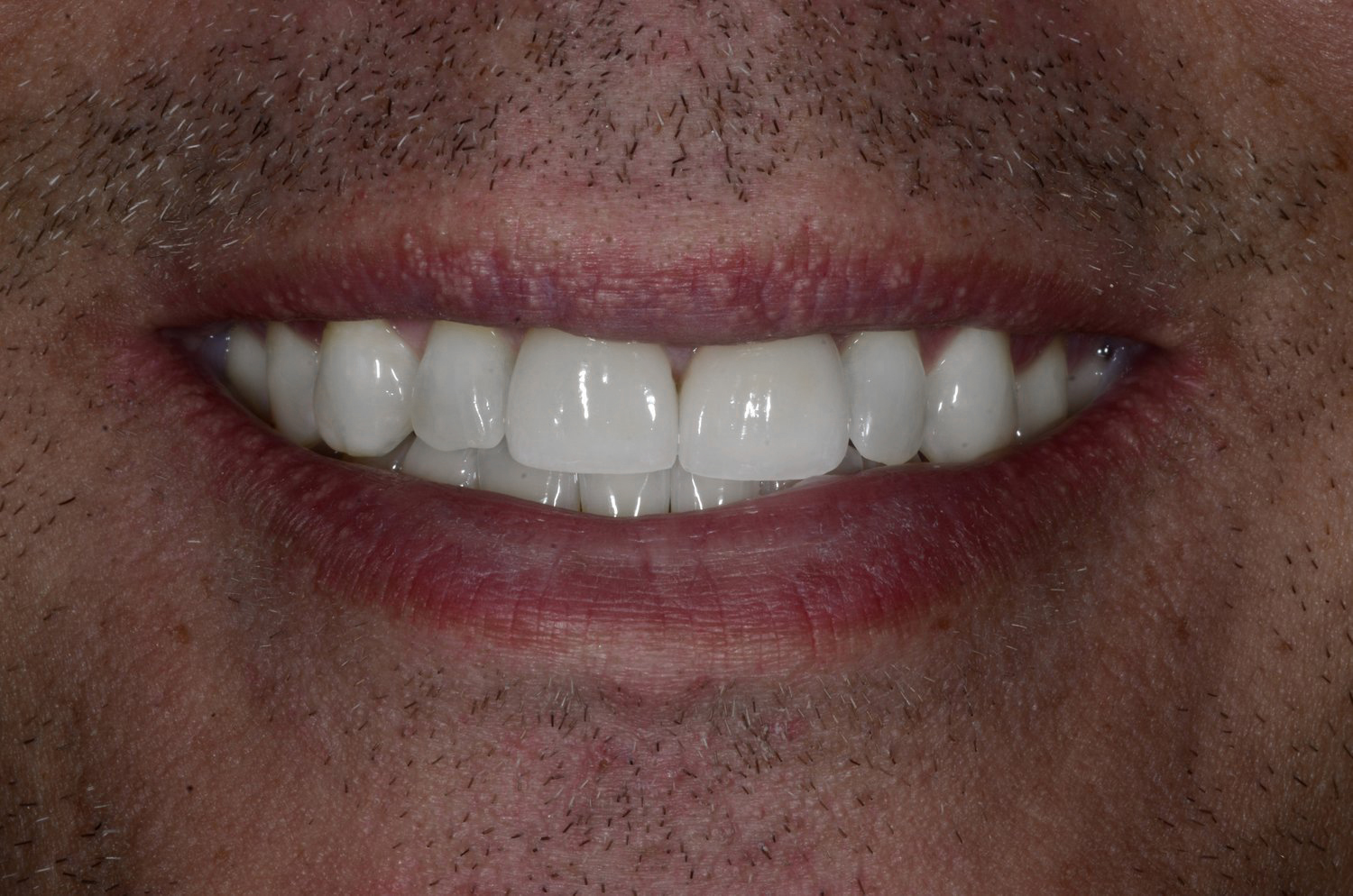After: Invisalign® to broaden the smile. Two custom porcelain veneers.