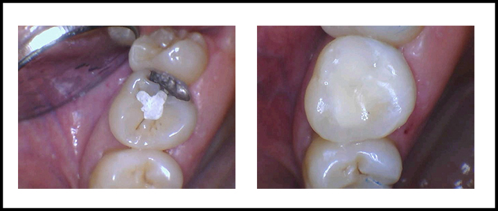 Amalgam Removal Before and After 1.jpg