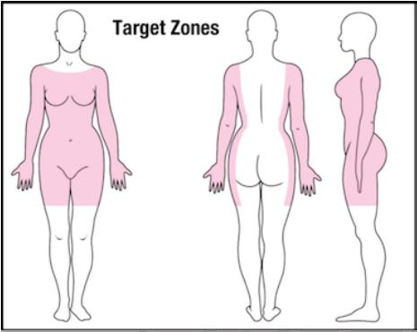 blocking target zones