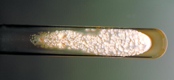 Sporotrichosis-cdc3.jpg