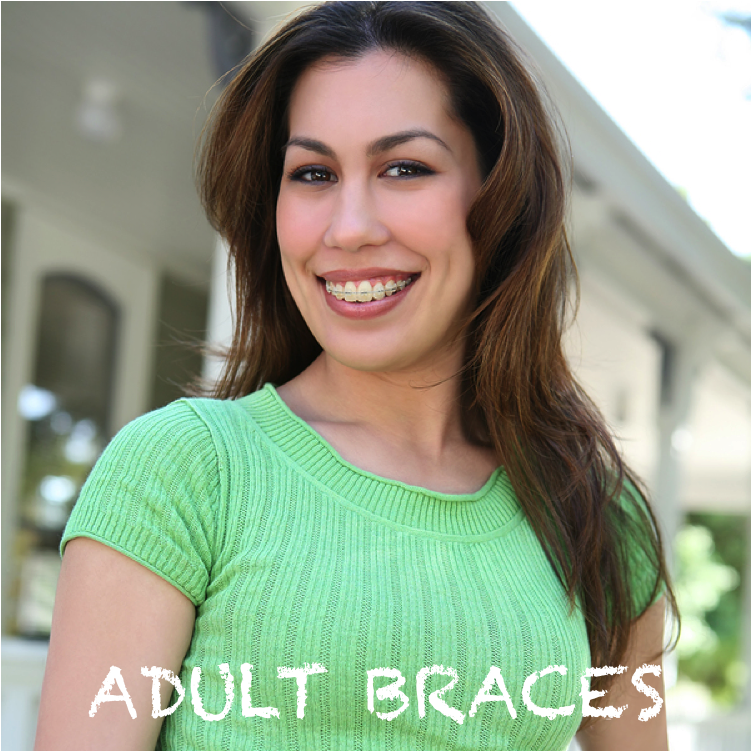 More adults are wearing braces today!