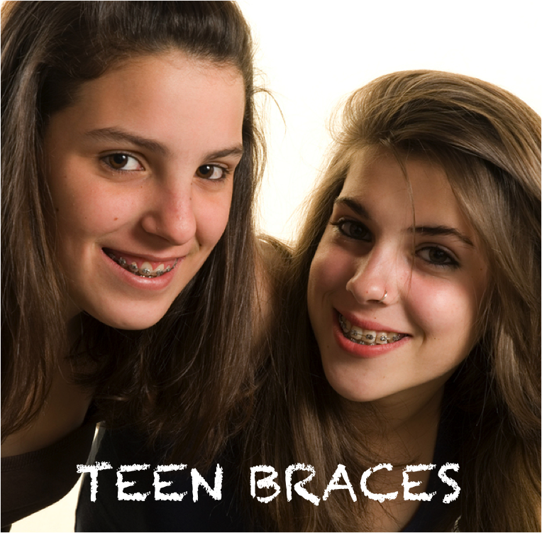 Teens love colors on their braces!