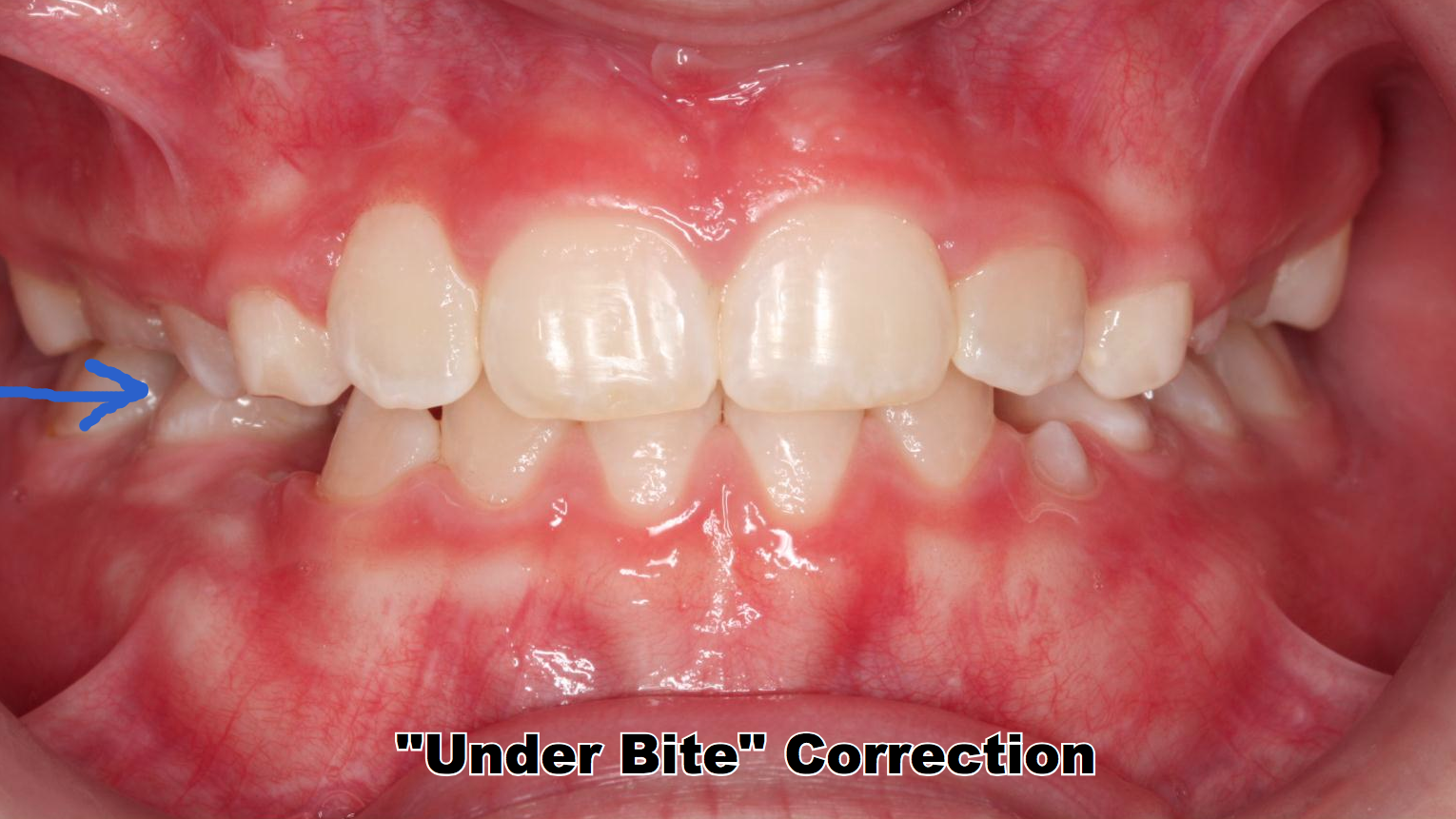 After Phase I Early Orthodontic Treatment the Under Bite is corrected.