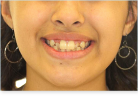 Before teen braces