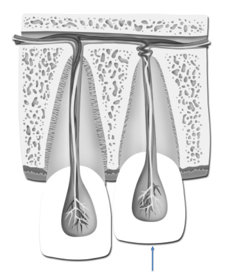 Intruded tooth