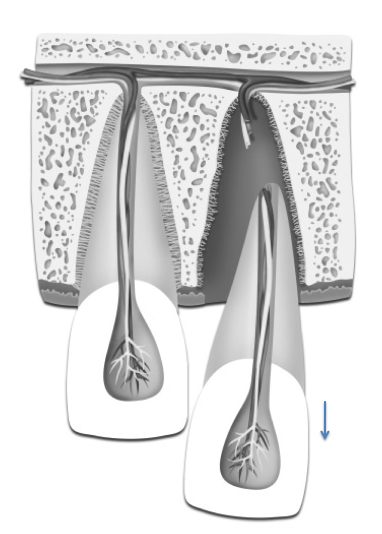 Extruded tooth