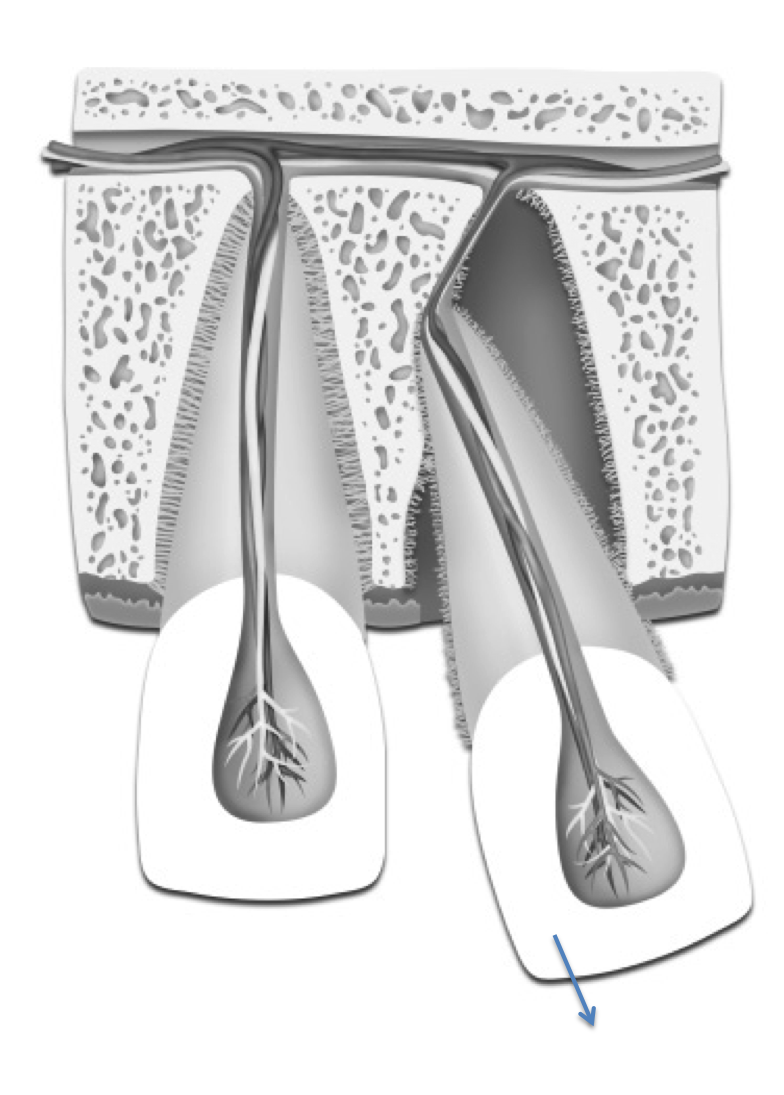 Luxated tooth