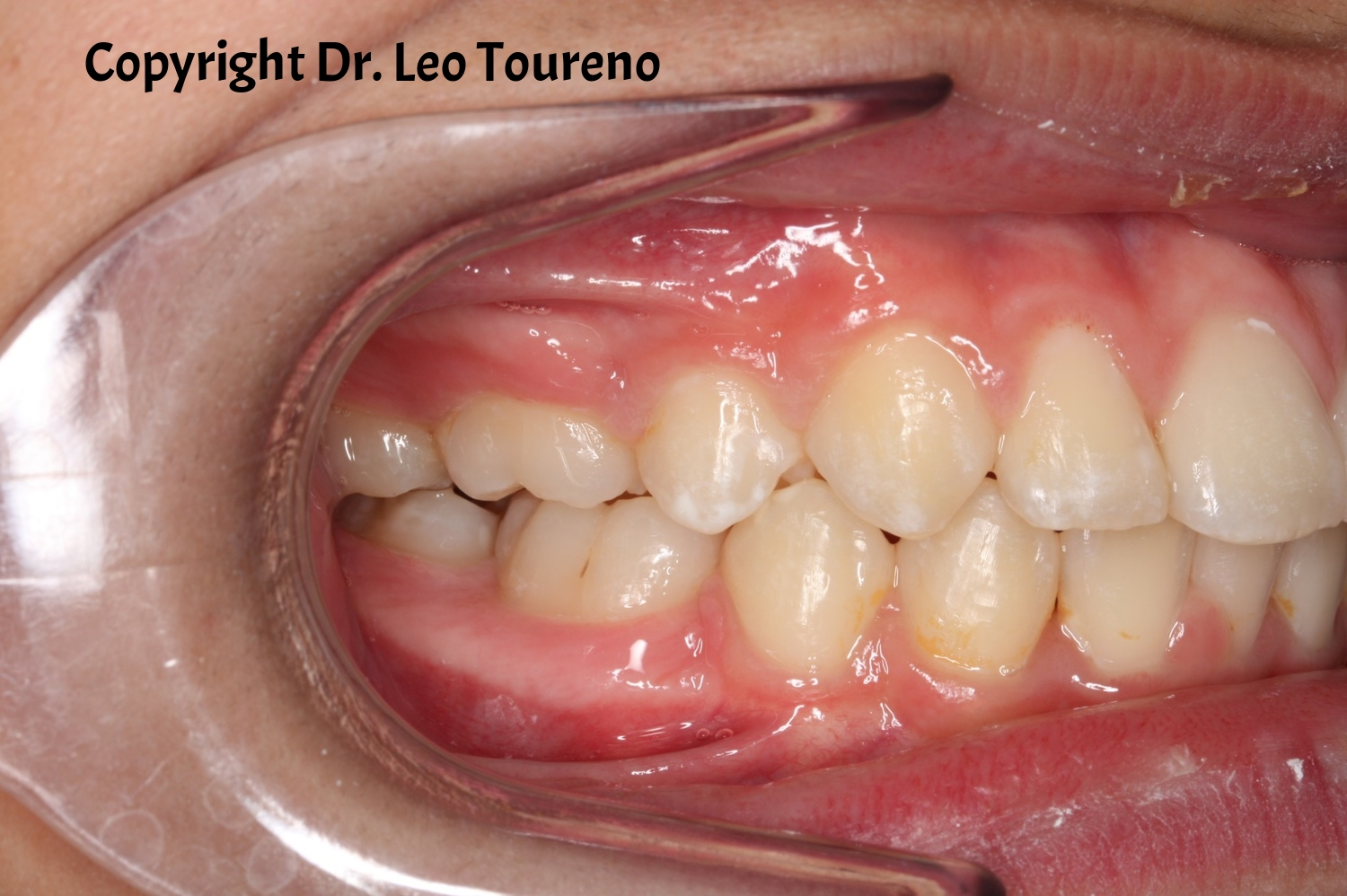 Right Intraoral Photo.jpg