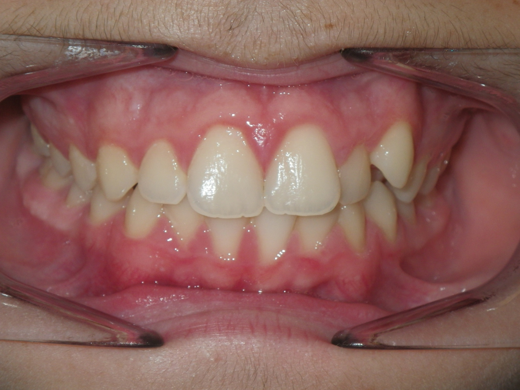 Bite on your back teeth completely and retract your cheeks with your fingers. Take picture of the Front of your Teeth.