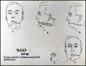 c. Soole A.F. sketch.jpg