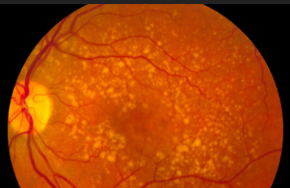 retina-age-related-macular-degeneration-600x538.png