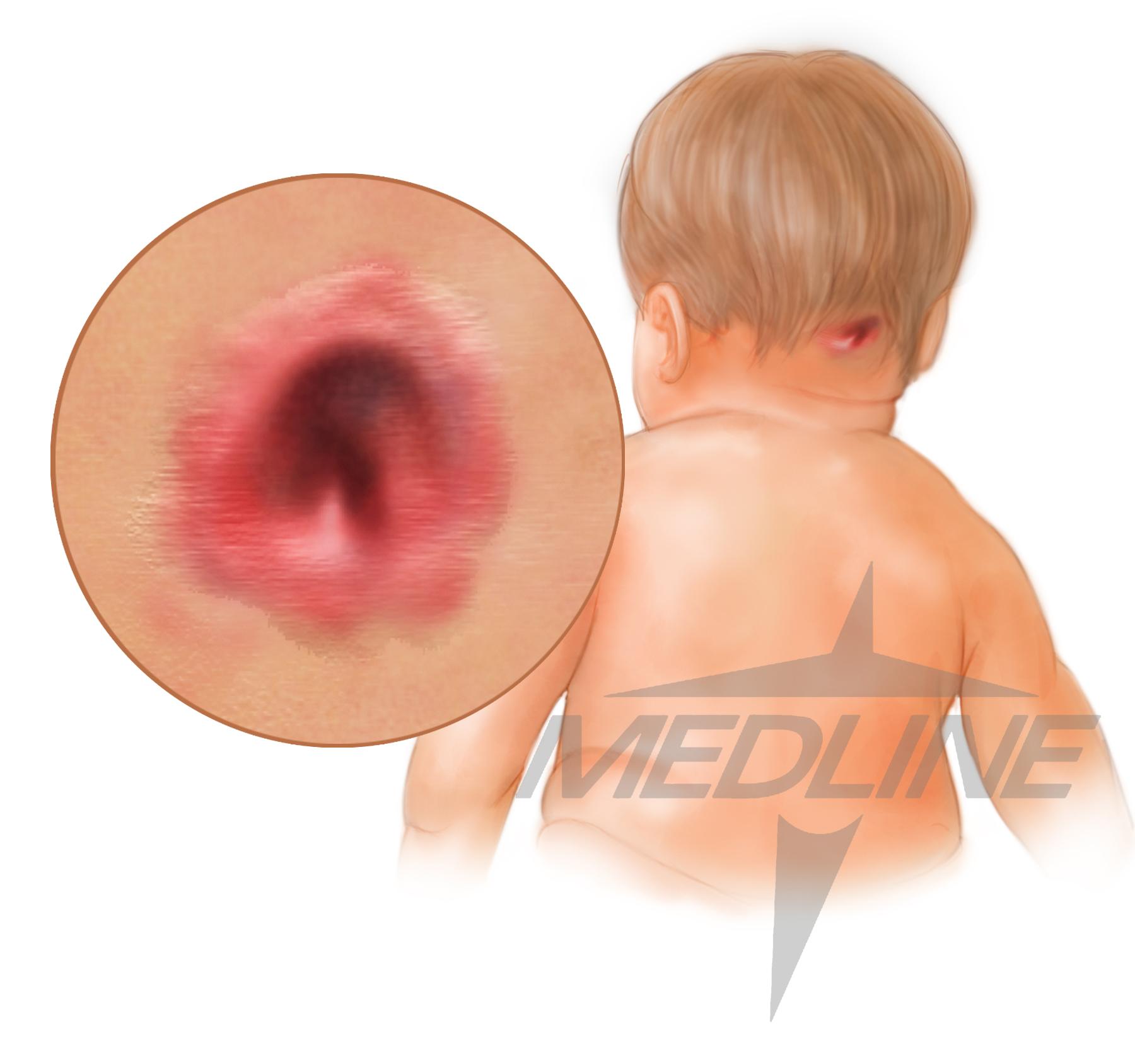 occipitalpressureinjury.jpg