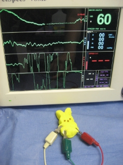 As you can see from the above readings, peeps aren't easy to monitor under anesthesia as ekg readings are difficult to interpret