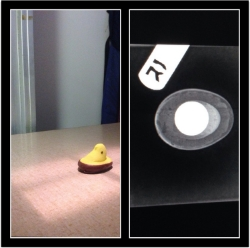 This peep ate a penny (X-rays confirm it)