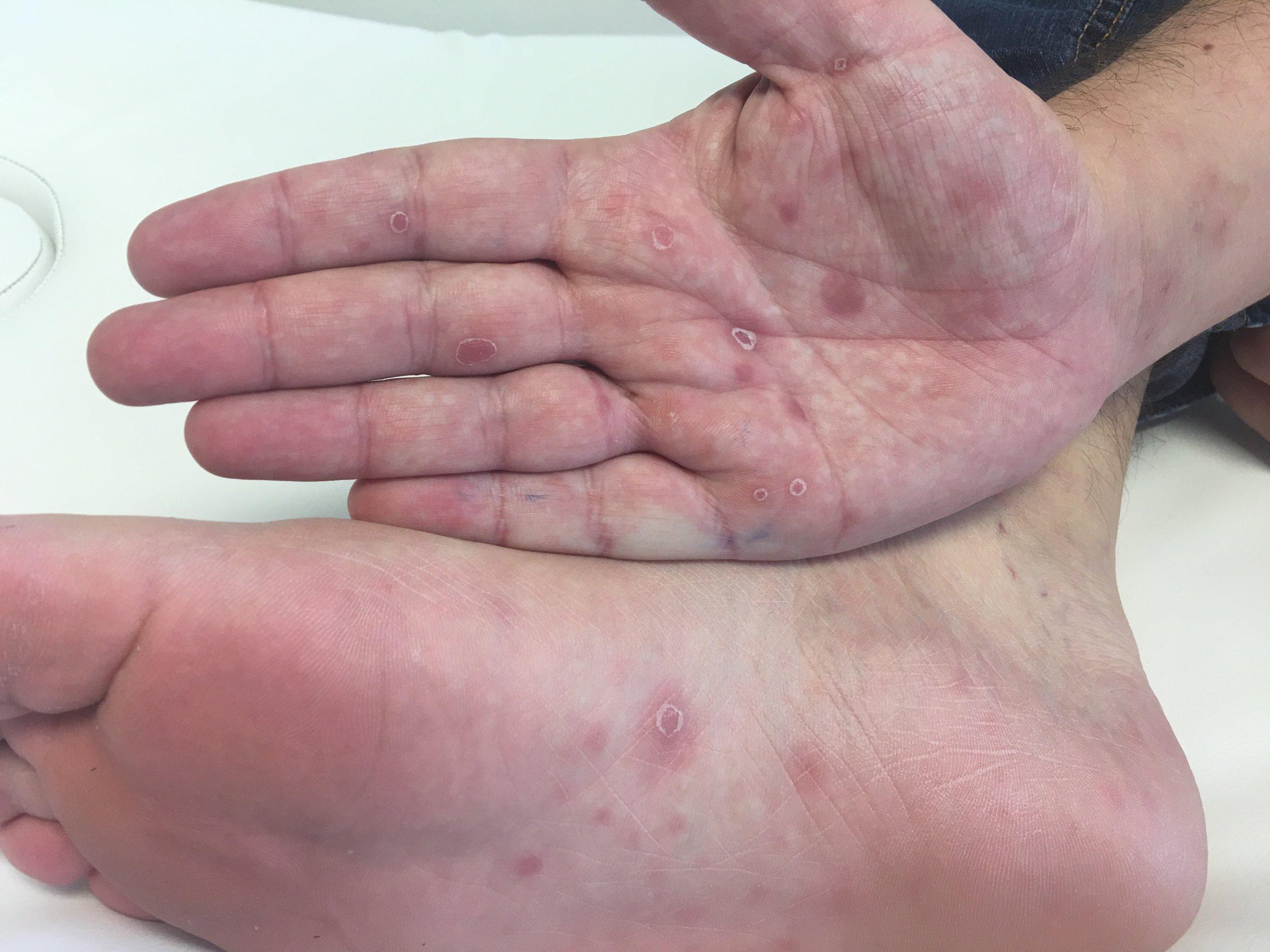 Lesões palmas de mãos e plantares características de sífilis secundária.