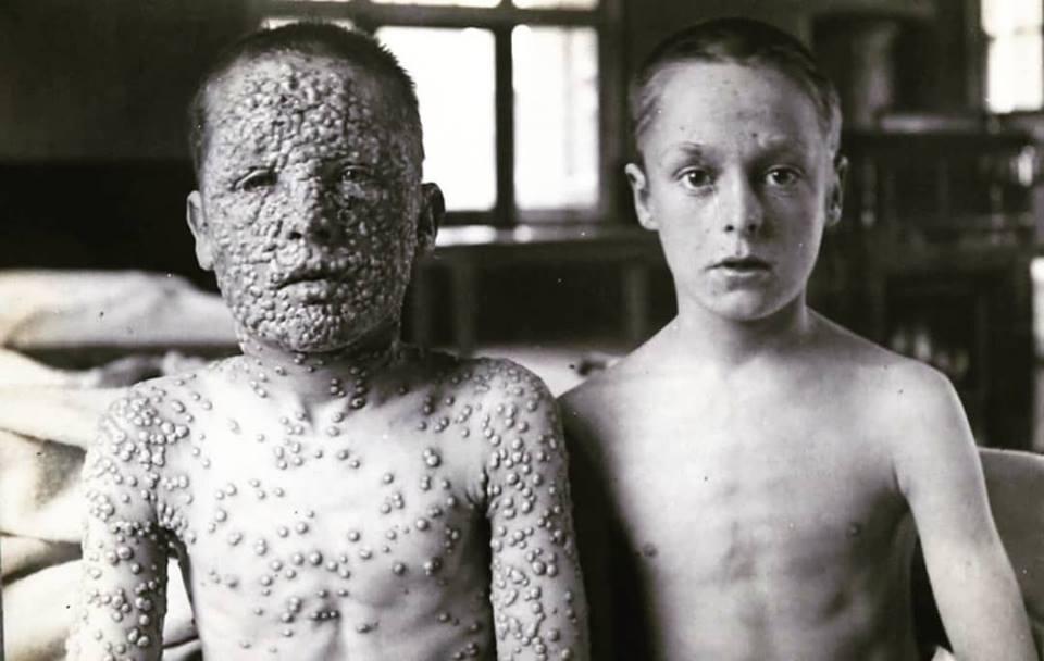 Duas crianças, apenas uma foi vacinada.