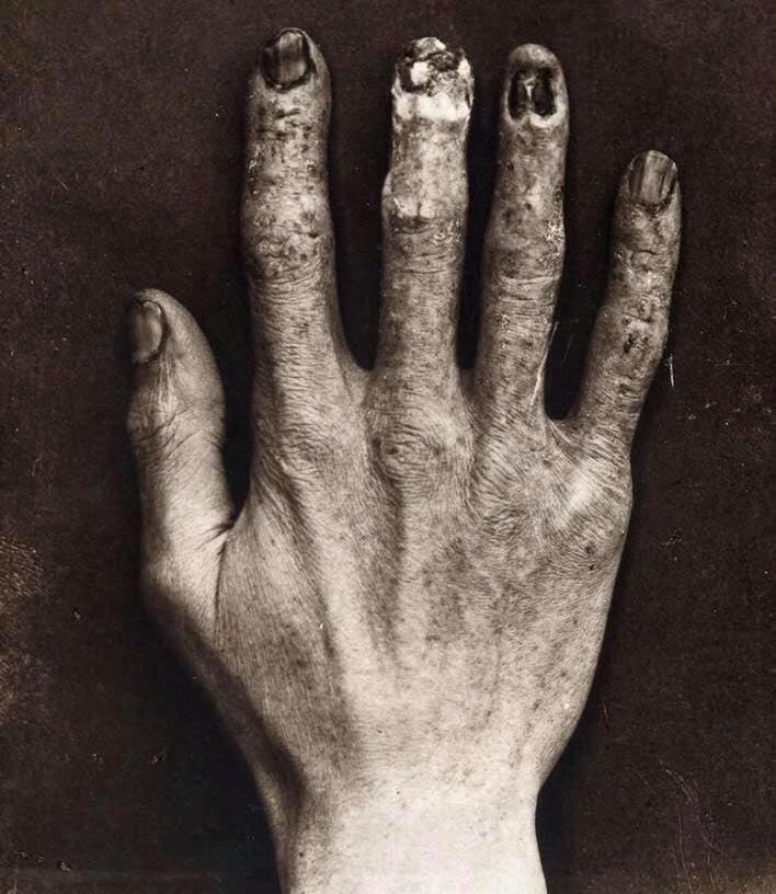 Mão técnico de radiologia - cerca de 1900