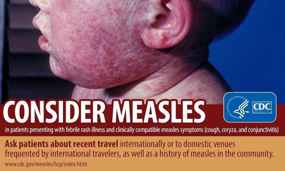 Rash maculopapular do sarampo - imgem site CDC.