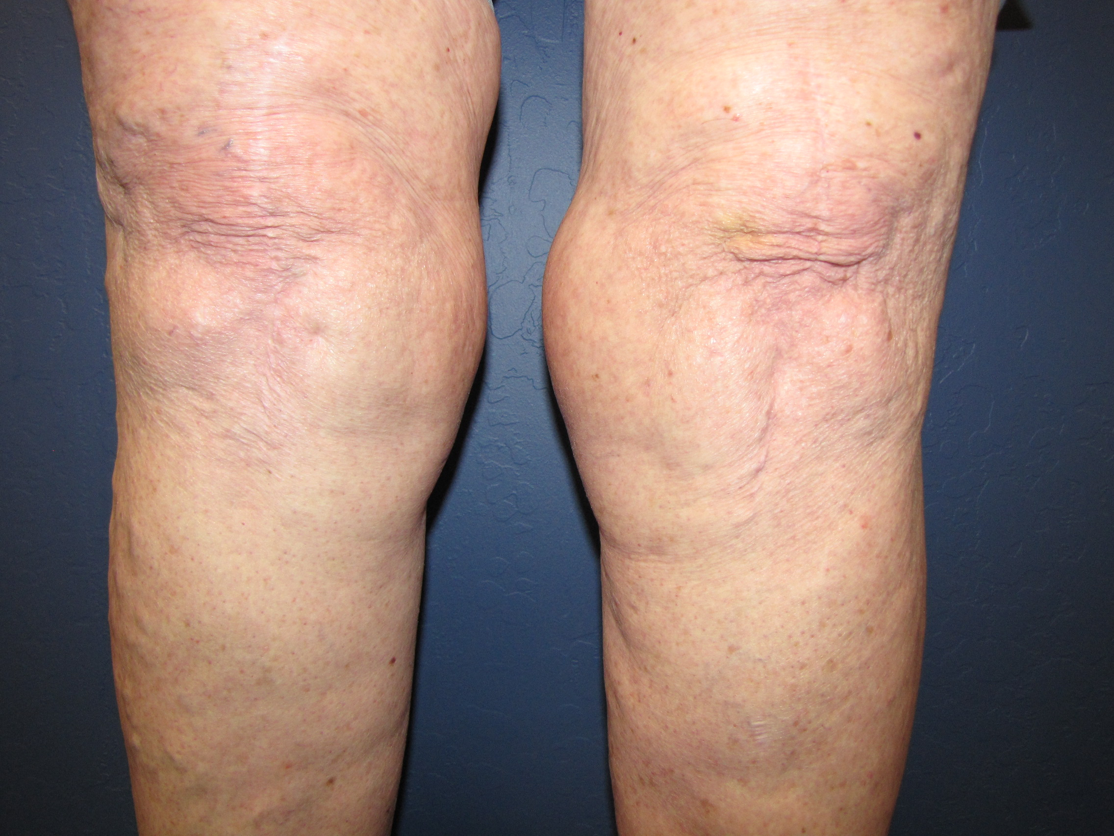 Liposuction-of-knees-pre.jpg