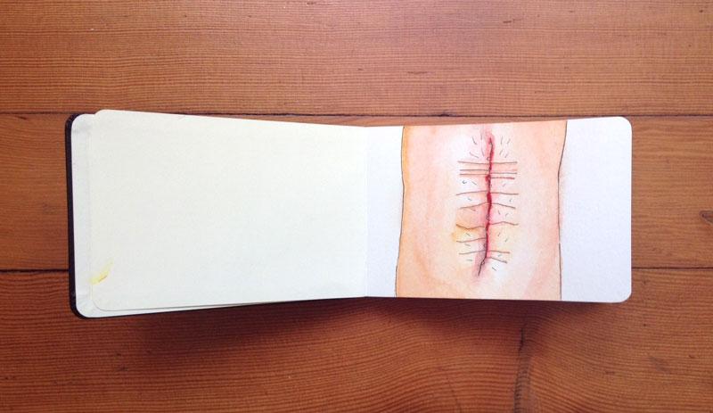 knee scar