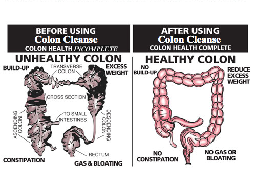 colon hydrotherapy deals dubai