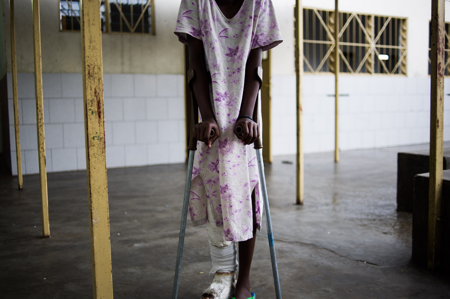 The use of children in conflict is widely reported in Congo. This girl was recruited by a different rebel group and used as forced labour for them, until she was injured by a stray-bullet.