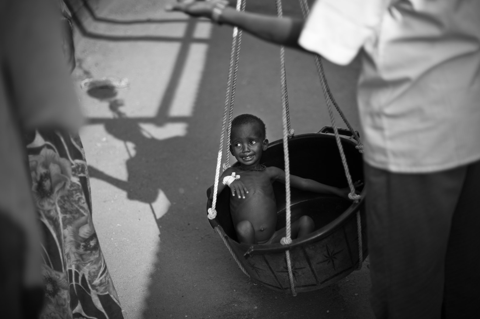 A Somali child suffering from acute malnutrition is weighed at the Médicins Sans Frontières (MSF) hospital in Dagahaley refugee camp. MSF is currently treating over 7000 children for malnutrition in Dagahaley alone.