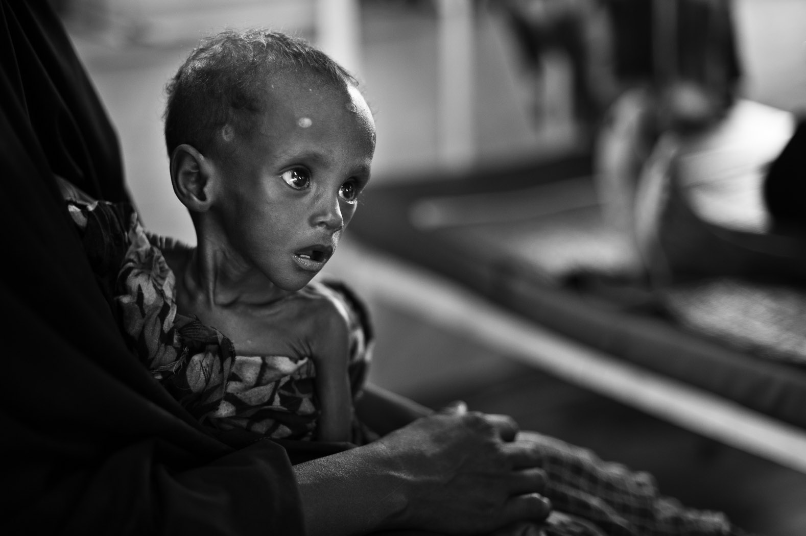 A Somali child suffering from severe acute malnutrition sits in a ward at the Médicins Sans Frontières (MSF) hospital in Dagahaley refugee camp. Estimates for the number of children suffering from malnutrition in the outskirts of Dagahaley are over 40%.
