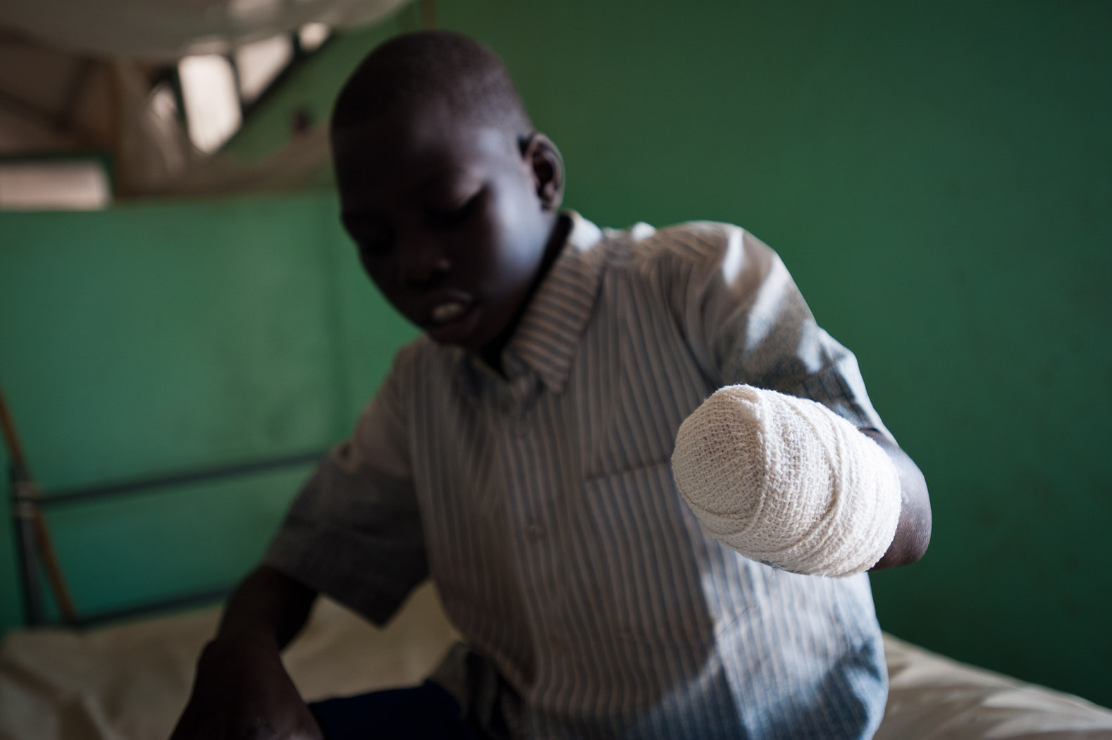 """Jacomo Tia Jibril (4) lost his hand and half of his forearm as a result of the bombing of his village of Kurchi by Sudanese Armed Forces fifteen days previously. He was washing clothes at the only borehole in the village when the bombing occurred. After fleeing from the sound of the aircraft, Jacomo says """"immediately after, I found my hand hanging off"""", which later had to be amputated in the facility."""