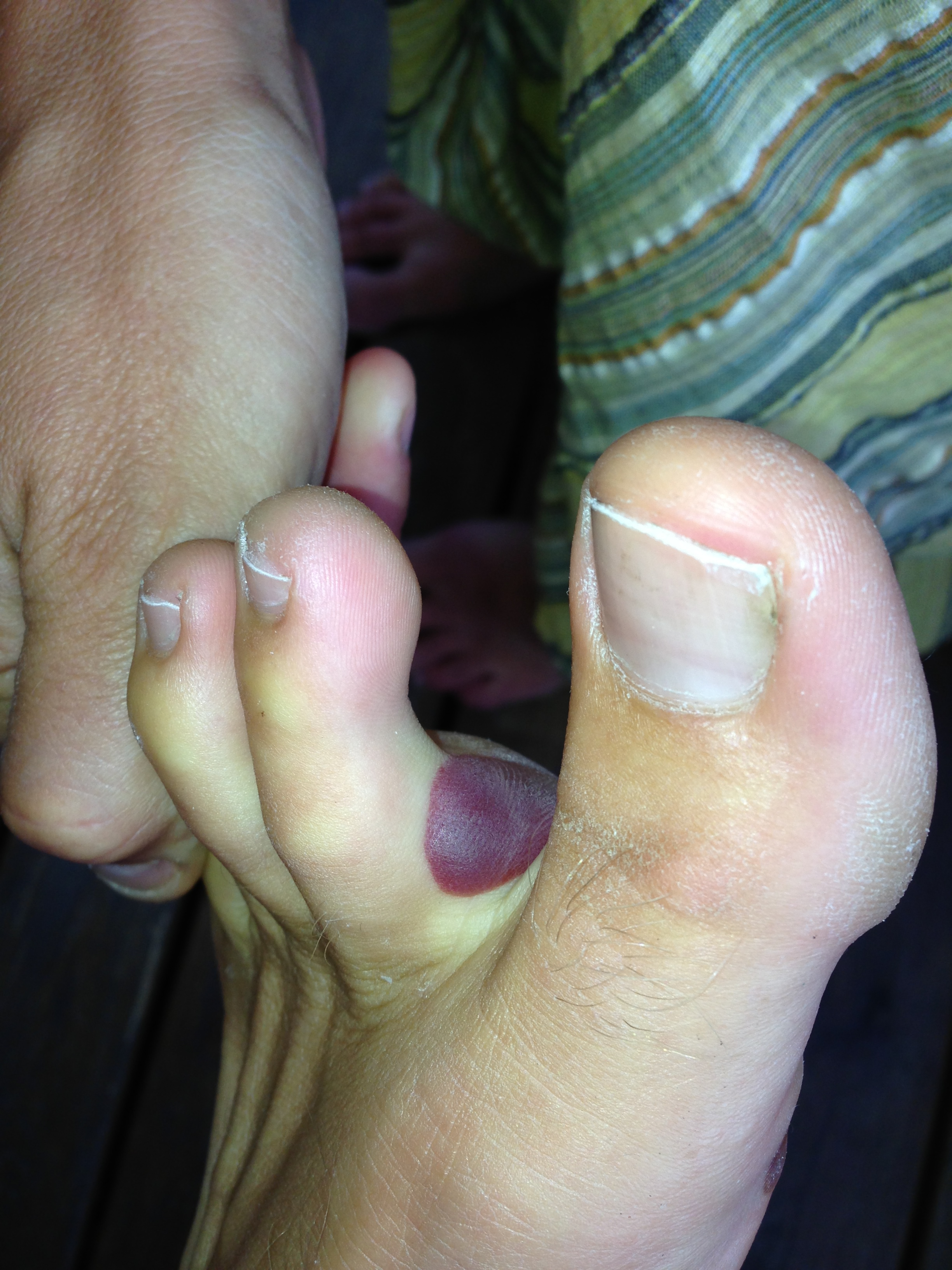 One unfortunate side-effect of barefoot shoes...