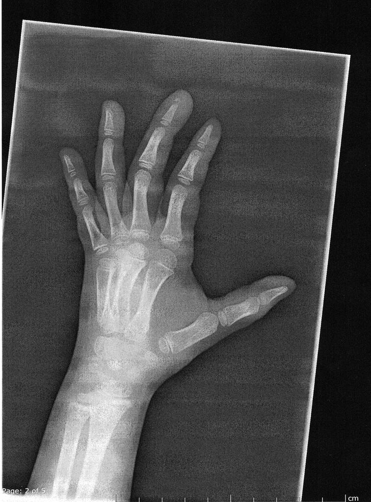 broken-finger.jpg