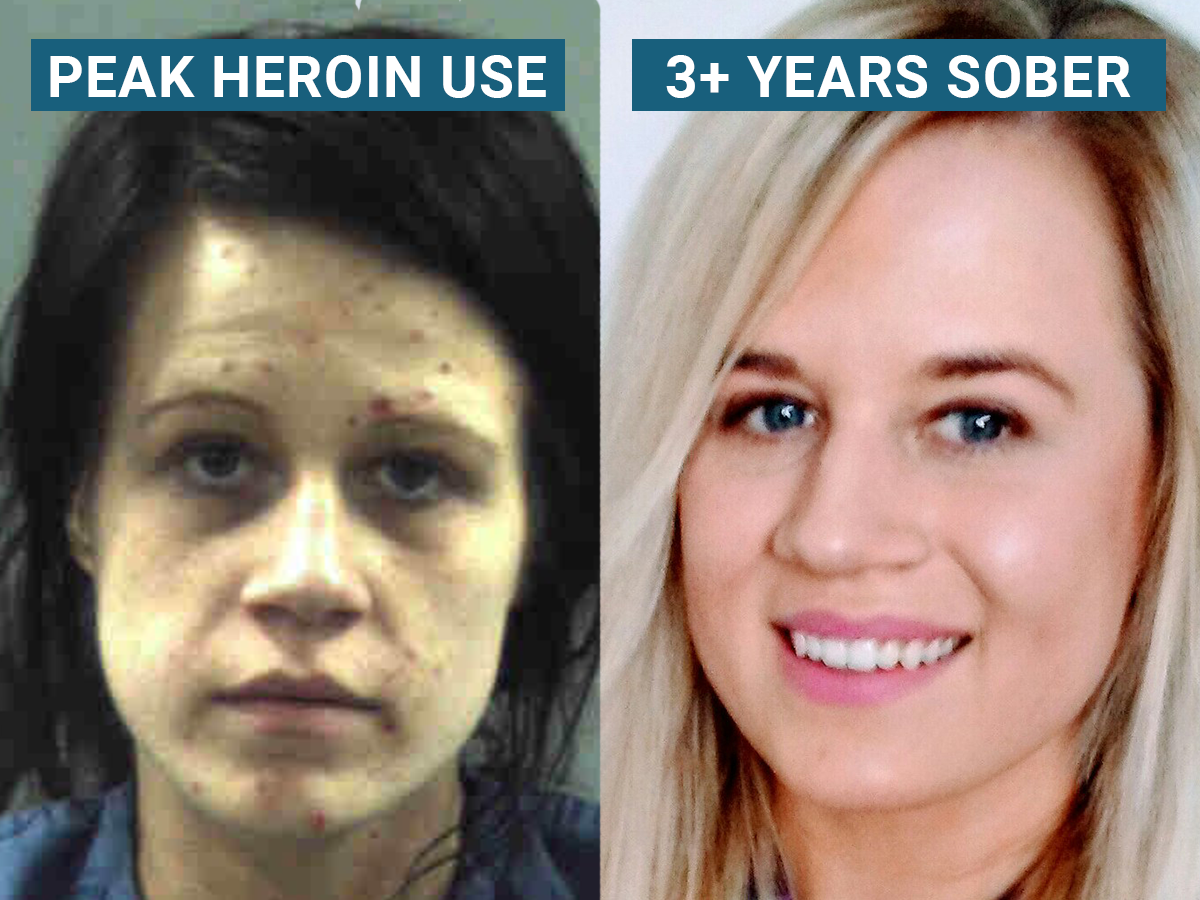 How painkiller prescriptions brought an explosion in heroin use to America's suburbs -