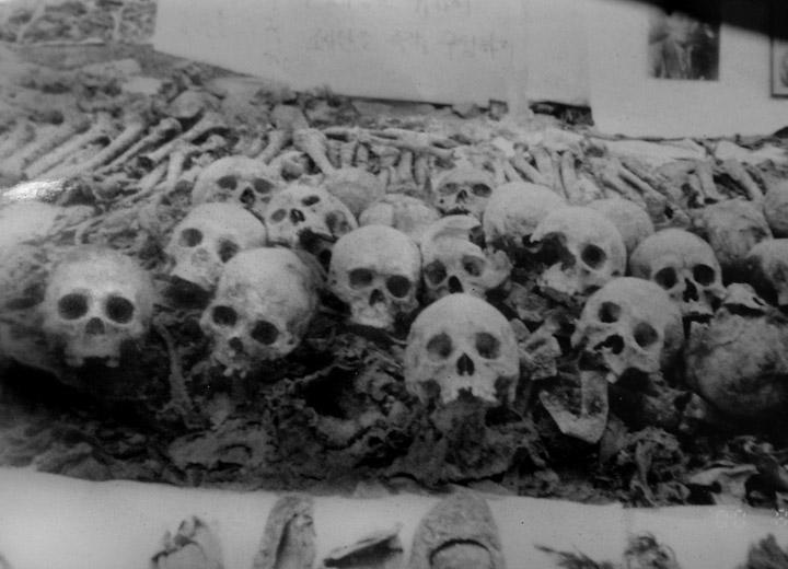 Exhumed human skeletal remains.