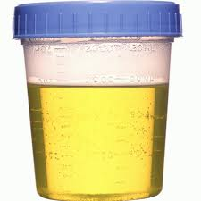 This urine sample has a lid.
