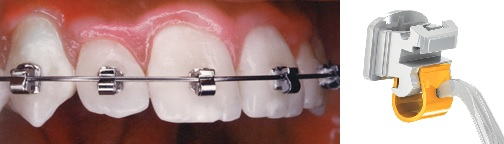 These braces are small; typically 1/3 smaller than traditional braces.