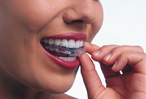 Invisalign: Aligner trays are made of smooth, comfortable, and virtually invisible plastic that you wear over your teeth.