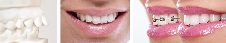 Aligners, Classic Brackets, clear brackets -options to meet your unique needs. Let the office know your request.