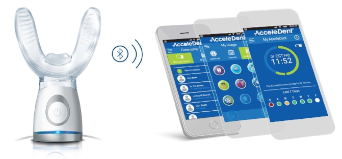 AcceleDent is used20 minutes each day.