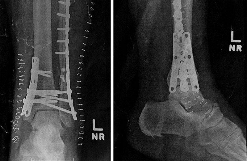 Pins and Hardware, artist, Dr. Michael Wilson on me...the impatient patient, Q.