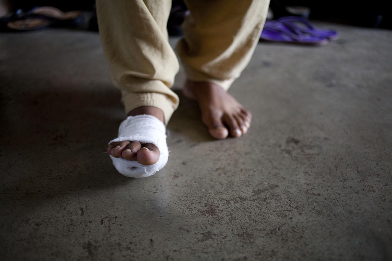 Becca_Ewing_Suttur_glass in foot.jpg