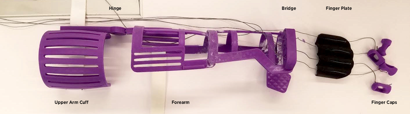 A modified Airy Arm orthotic